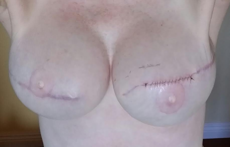 Pictures of breast reconstruction